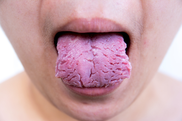 8 Warning Signs Your Tongue May Be Sending About Your Health