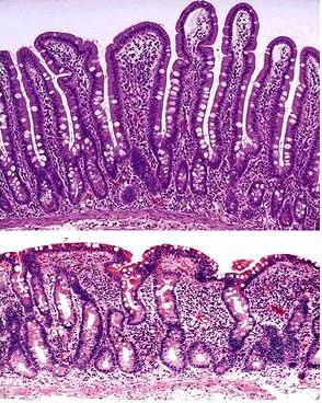 Celiac Disease  Gluten Allergy   Ayurvedic Diet   Natural Home Remedies