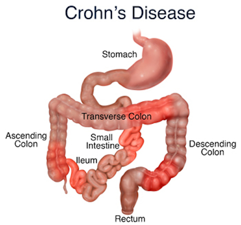 crohn's disease - ayurvedic diet & natural home remedies, Skeleton