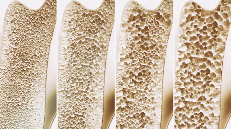 Bones Ayurveda